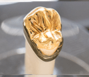 ゴールド全部鋳造冠