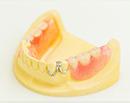 保険の入れ歯